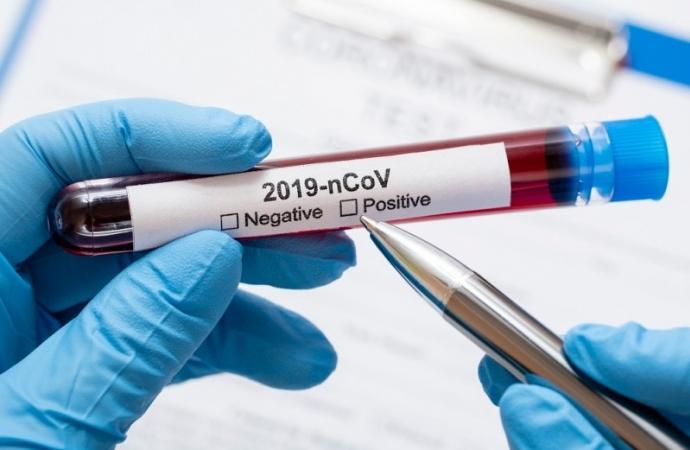 Sete pessoas morrem por Covid-19 em Foz e 250 novos casos são registrados